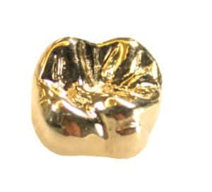 sell dental gold, sell gold, St. Paul, Minneapolis, MN