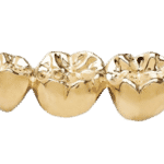 sell dental gold, dental gold, sell gold, st. paul, minneapolis, mn